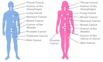 Cancer in Men and Women
